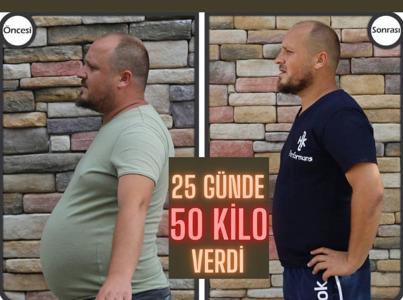 25 Günde 50 Kilo verdi